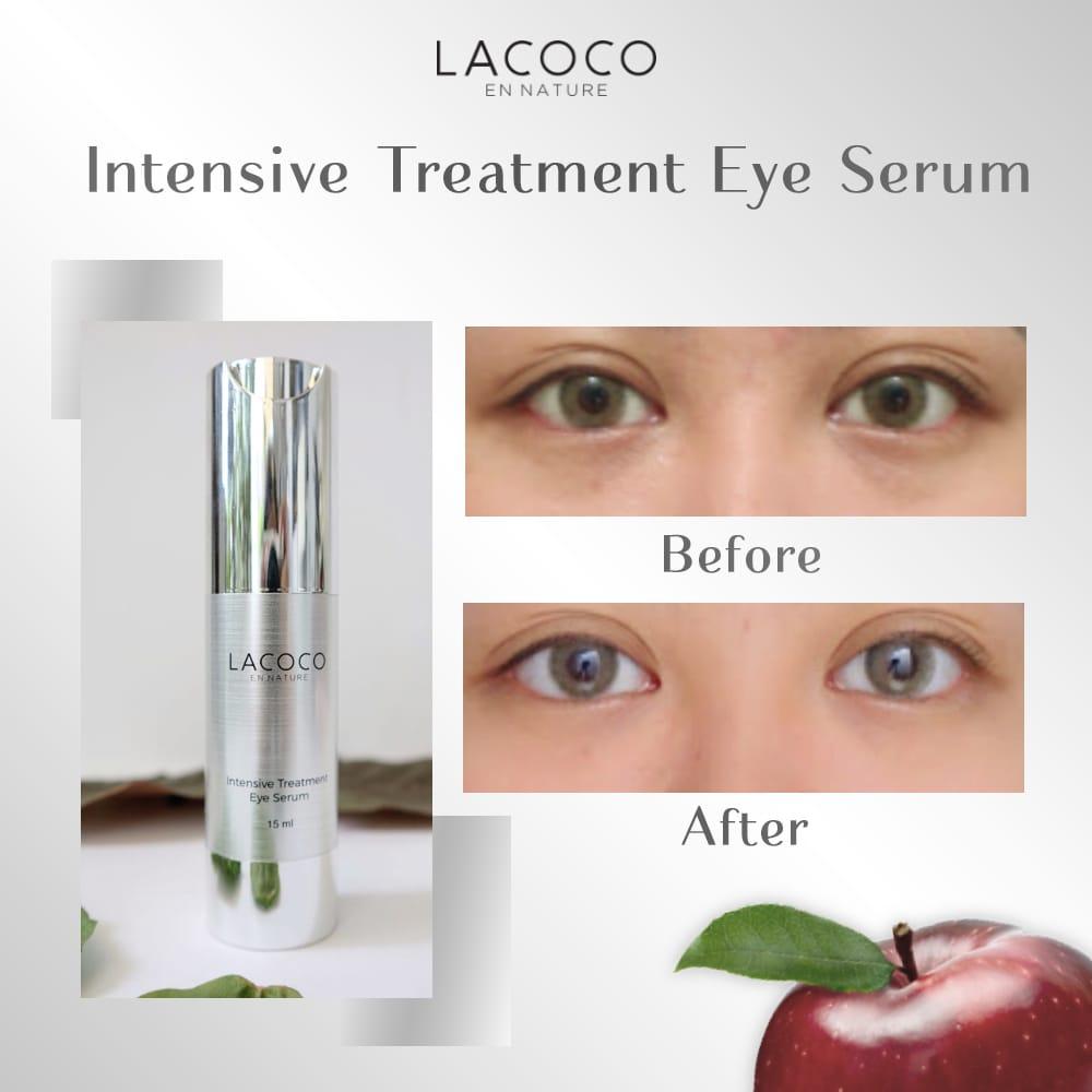 Manfaat dan Cara Pakai Lacoco Intensive Treatment Eye Serum Nasa